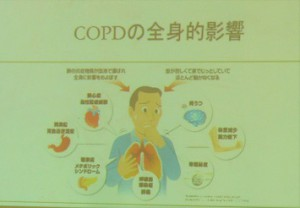 COPDの全身的影響