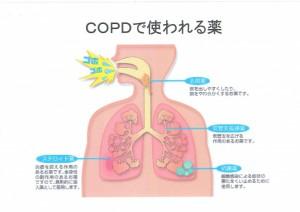 COPDで使われる薬